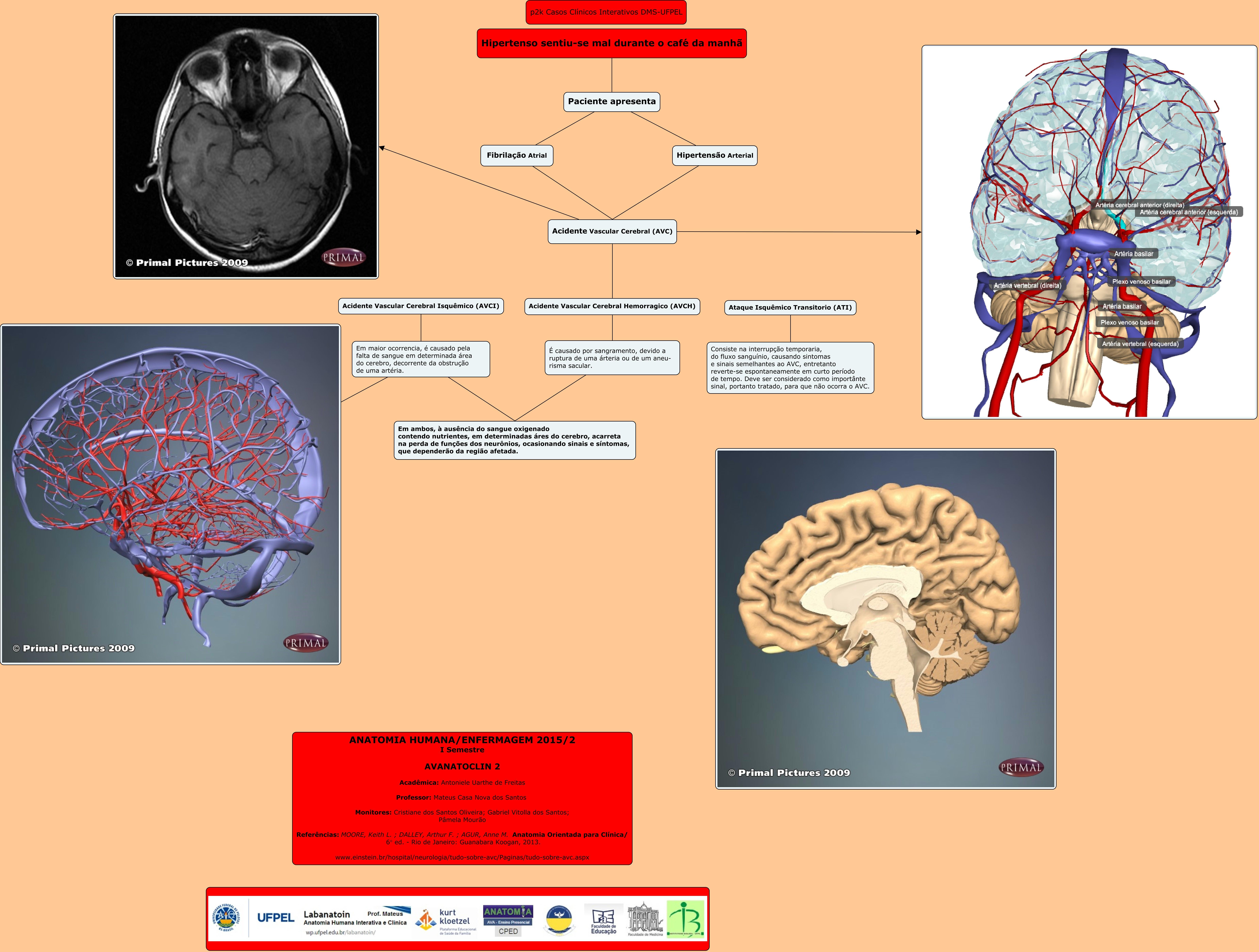 Dorable Anatomía Suministro De Sangre Cerebral Ilustración ...